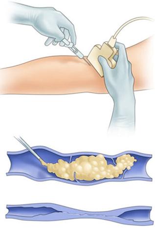 Лечение флебопатии