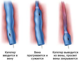 Очень болят ноги вены