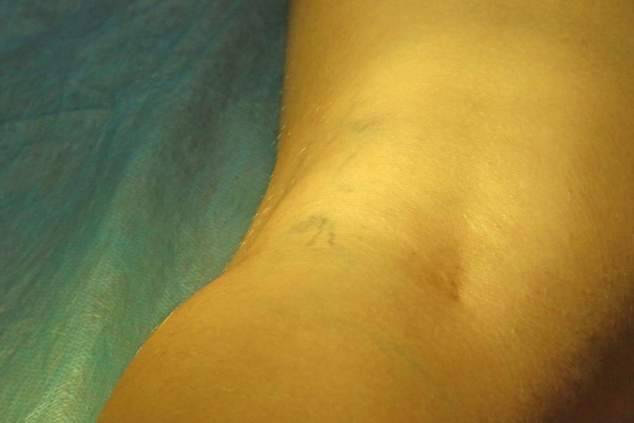 сосудистые звездочки на ногах народные методы лечения Народные методы лечения при сосудистых звездочках на ногах