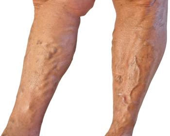 Симптомы и опасности варикоза